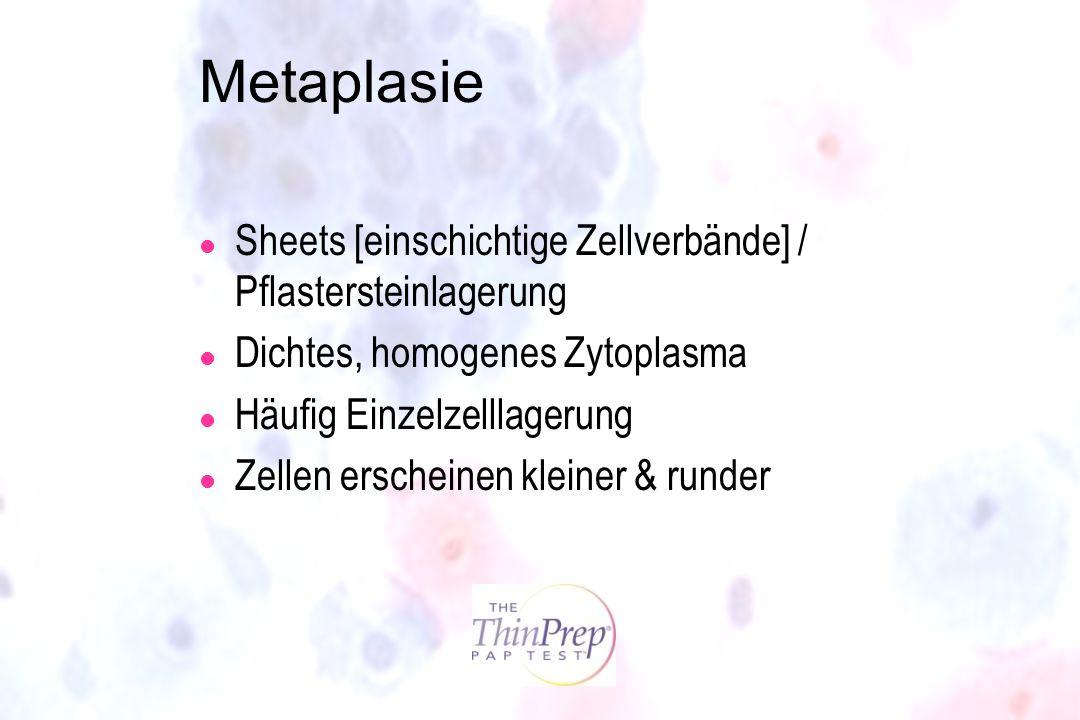 Metaplasie Sheets [einschichtige Zellverbände] / Pflastersteinlagerung